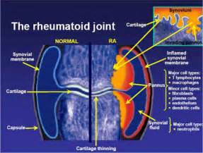 rheumatoid arthritis pain relief picture 2