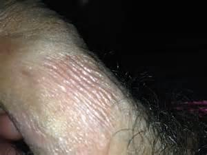 hot showers irritate skin picture 13