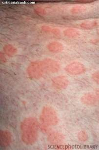 red patchy hives picture 9