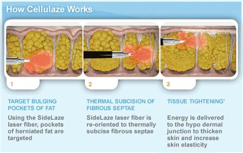 cellulites remove procedure picture 15