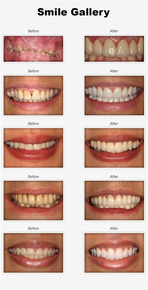 apple valley teeth whitening picture 6