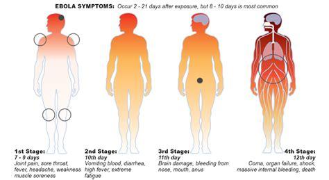 stomach virus 2014 diarrhea picture 10