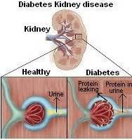 diabetic diets for men that are 72 years old picture 15