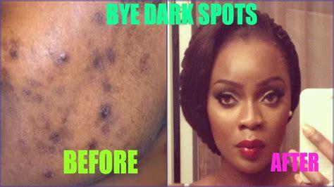 aloe vera and acne spot treatment picture 8