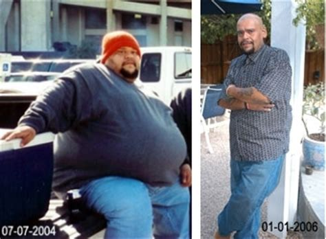 will gastric byp work if i'm weight loss picture 12