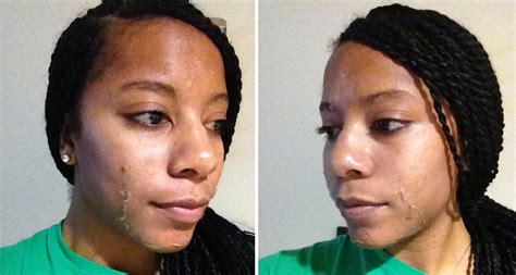 chemical ls on african american skin picture 15