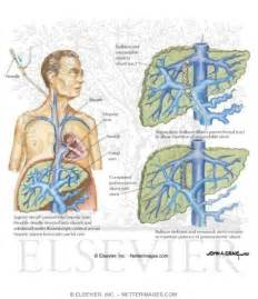 complications of a liver biopsy picture 6