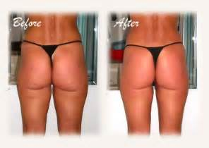 body wrap best wrinkle creams 2014 picture 5