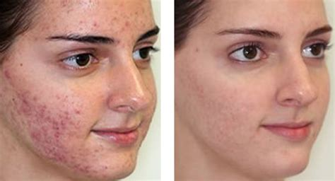 skin clear acne and laser center picture 12