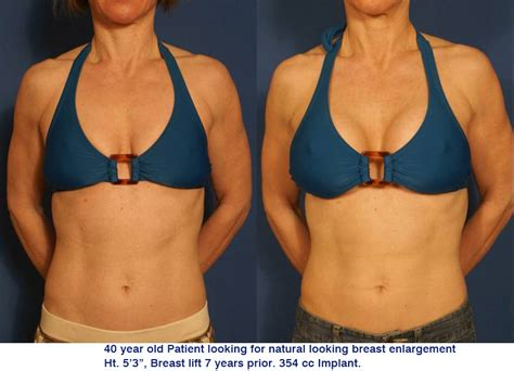 breast augmentation charlotte nc picture 7