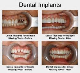 after radiation teeth implants picture 2