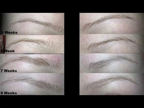 stop eyebrows growing back picture 3