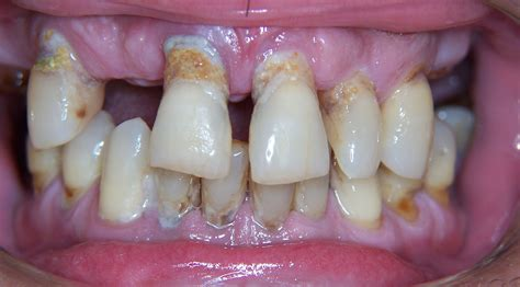 bad teeth picture 9