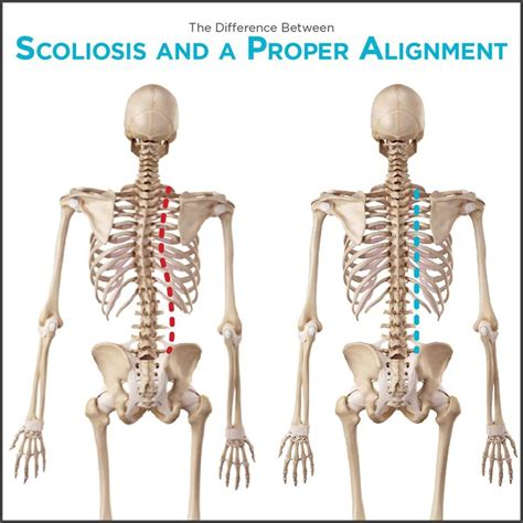 scoliosis back and neck stiffness el disorders picture 1