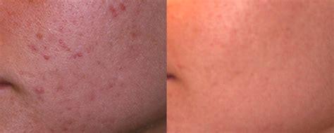 acne records picture 18