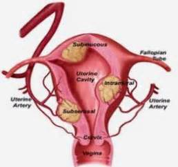 fibroid tumors and the thyroid gland picture 5