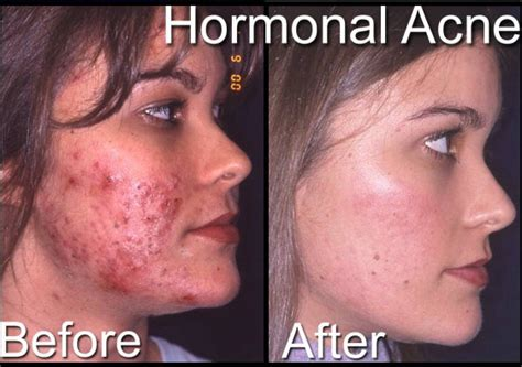 treating cystic acne picture 3