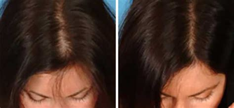 anti-aging hair treatment system picture 3