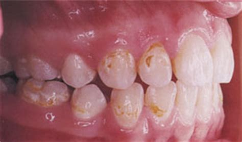 can weak spots in teeth be fixed picture 8