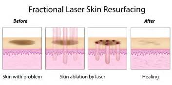 laser on diffrent skin conditions picture 1