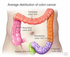 course of treatment for colon cancer picture 1