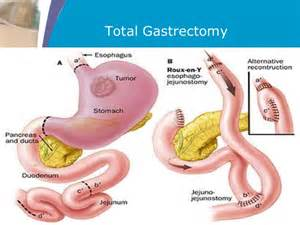 gastrointestinal lymphoma picture 9