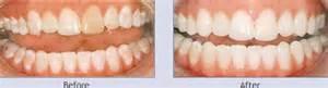 trenton teeth whitening picture 5