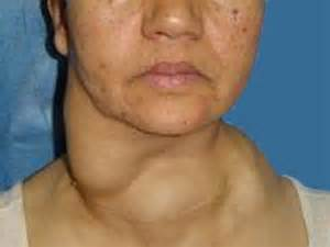cancer of the thyroid picture 15