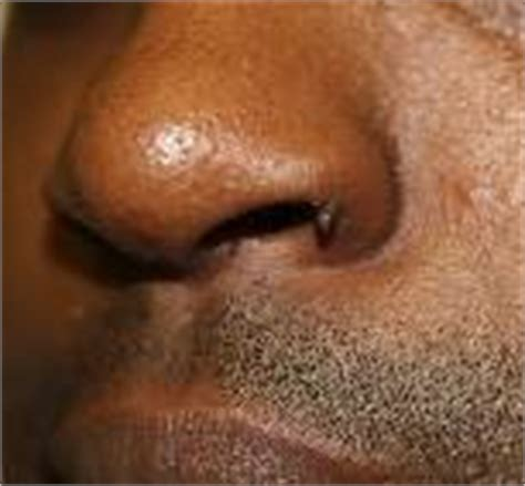 warts in the nose picture 5
