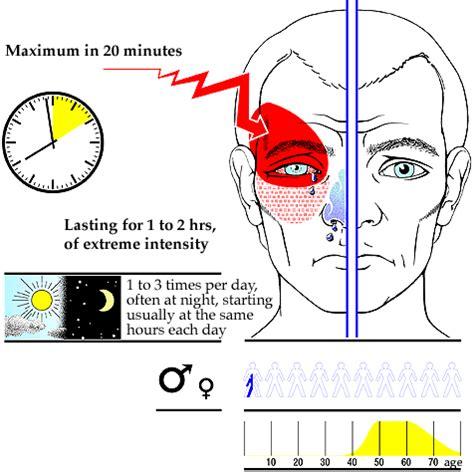 cluster headaches sleep fatigue picture 14