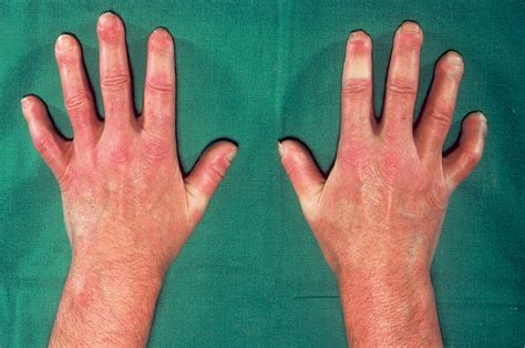 about herbs skin disease signs &symptoms picture 2