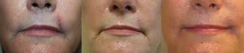 oral skin removal surgery picture 17