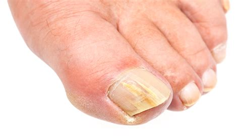 can candida cause toenail fungus picture 11