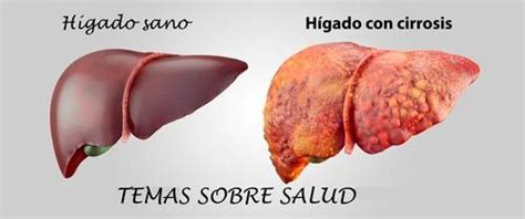 cirrosis of the liver picture 6