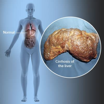 cirrossis of the liver symptoms picture 7