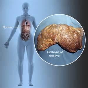 cirrhosis of the liver symptoms picture 5