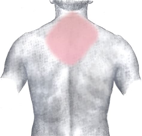 cold back pain picture 2