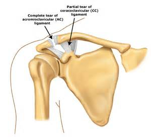 compression of the ac joint of the shoulder picture 3