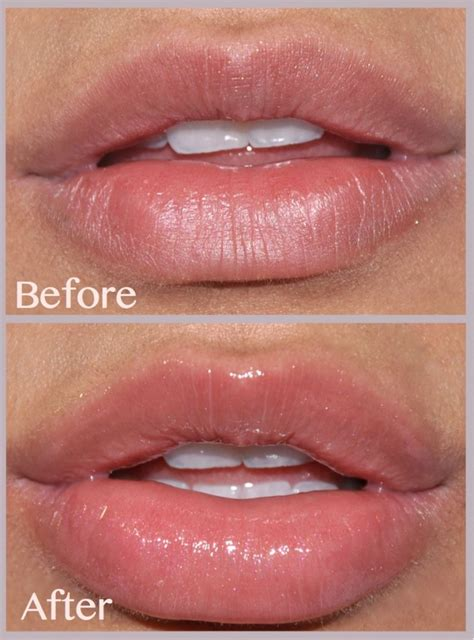 why does lip plumper burn picture 13