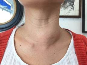 thyroid ethanol injections uk doctors picture 5