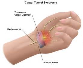 can tarcel tunnel syndrome give u pain in picture 13