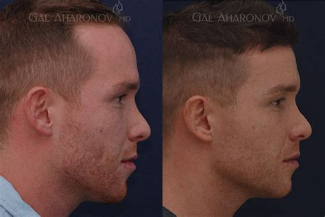 acne help picture 15