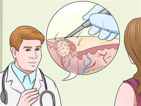 can you use home wart removers on genital picture 6