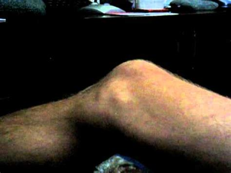 calf muscle twitching picture 3