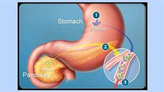 intestinal problems with joint pain picture 10