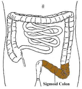 sigmoid colon burning pain picture 4