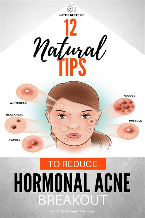 drugs that lower hormones for acne picture 9