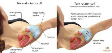 diagnose shoulder muscle tear picture 6