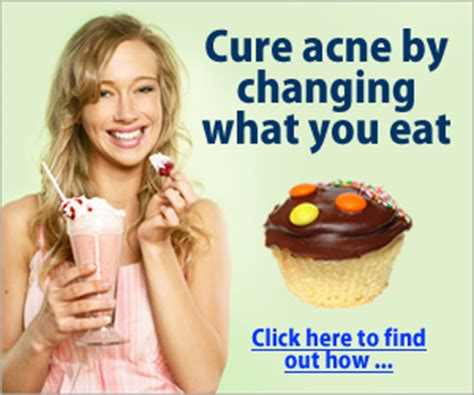 acne and diet picture 9