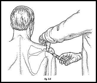how to inject steroid in the joint picture 4